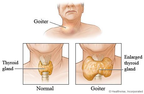 Who is at risk for goiter?